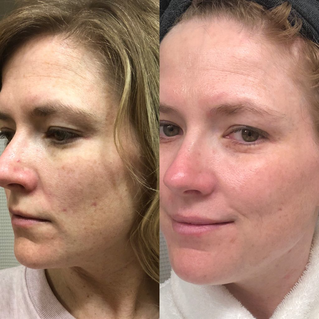 EVER Skin before and after from using Overnight Facial Oil with retinol. Image of woman's face before and after using retinol.