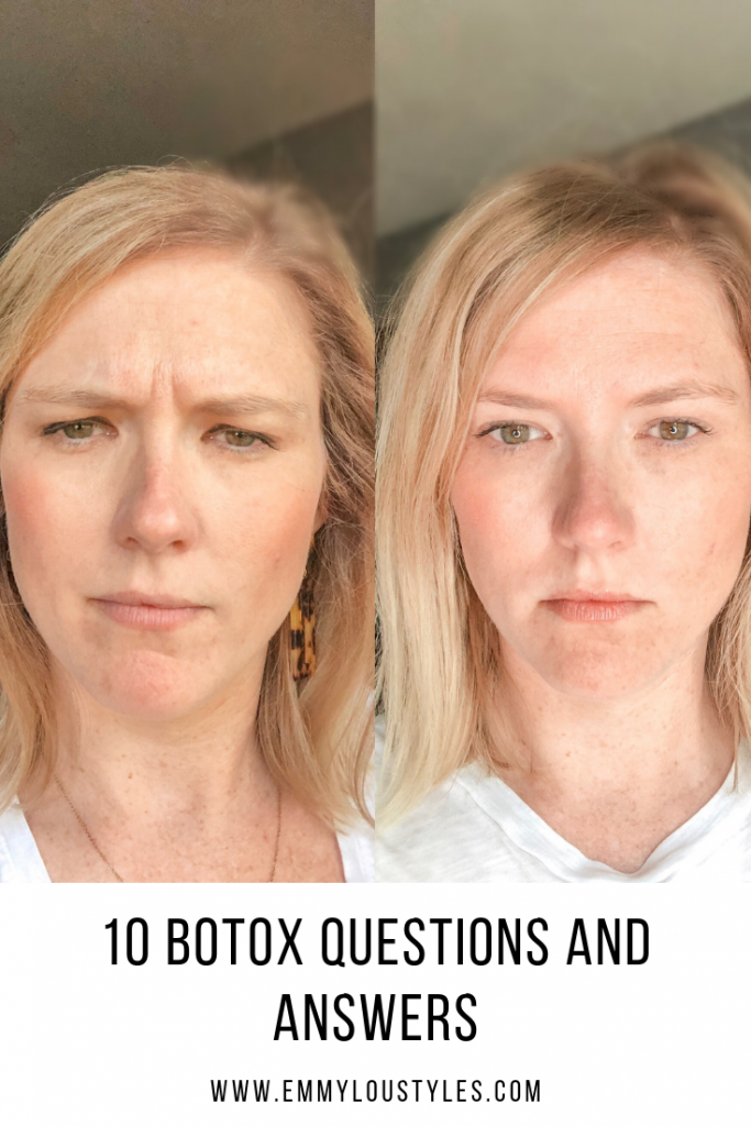 10 Botox Questions and Answers